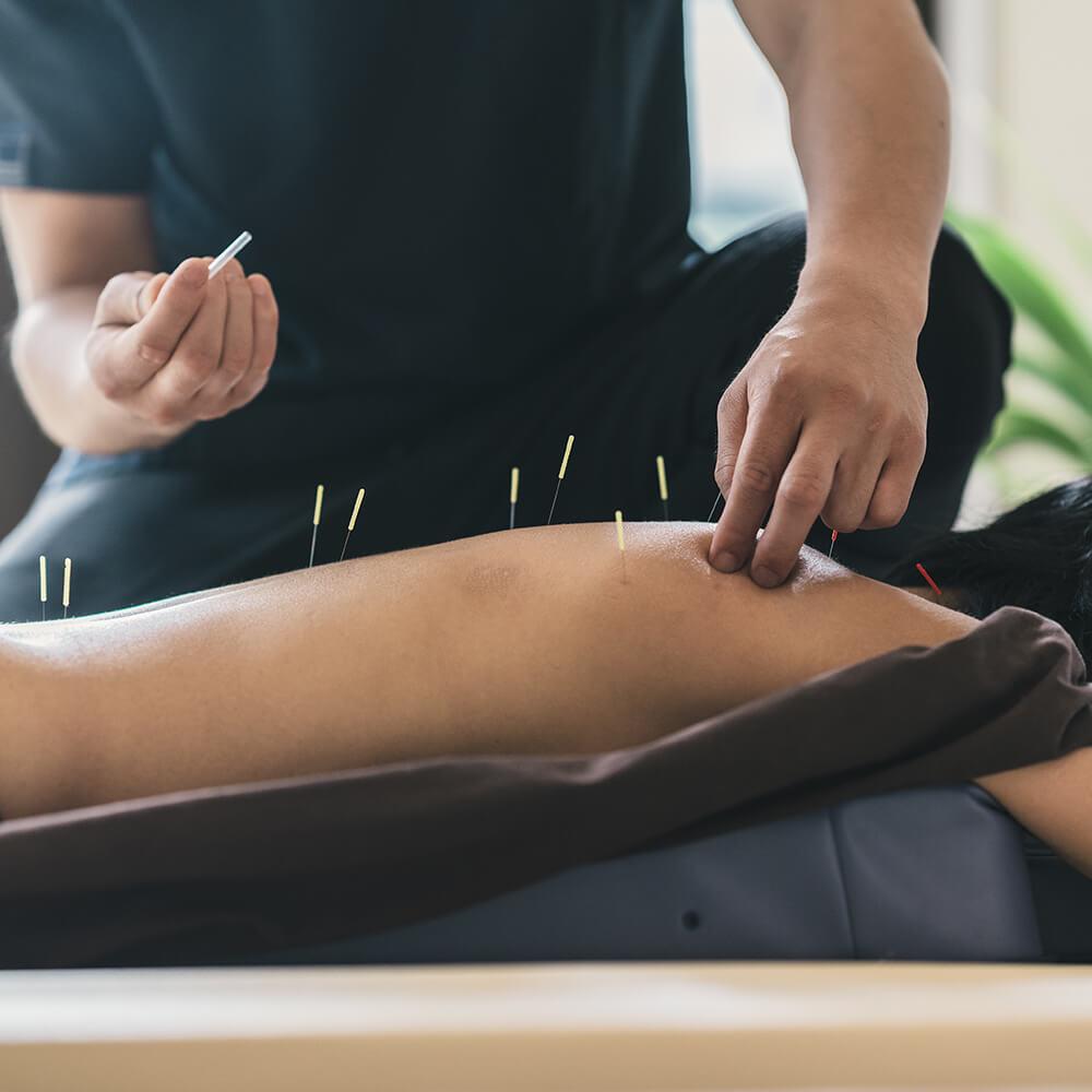 Akupunktur Hebe rygcenter